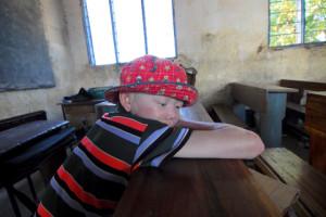 albino kid